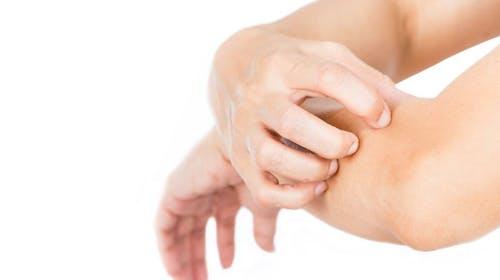 為什麼傷口結焦的時候會痕癢?